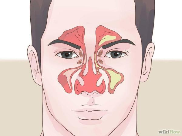 为什么会鼻塞呢?图片